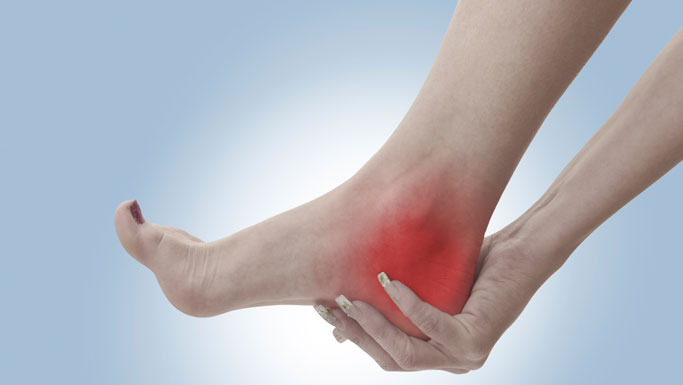 Fairfield Chiropractic Treatment for Plantar Fasciitis